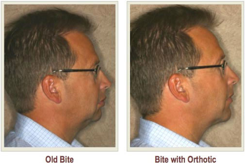 Tmj Tmd Affects Tmj Cleveland Solon Dentist