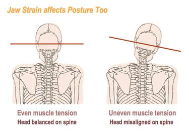 jaw_strain_posture_effect
