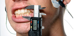 measure_teeth_test