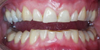 shortened_chipped_teeth_test_1