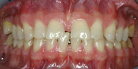 shortened_chipped_teeth_test_2