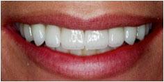 smile_restorations